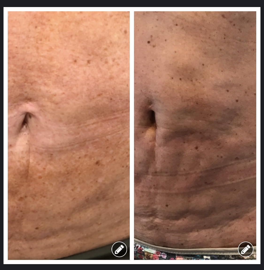 Cellfina Patient Before and After
