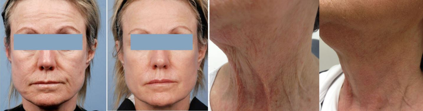 Infrared facial wrinkle removal houston