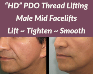 PDO Male Lift and Tighten